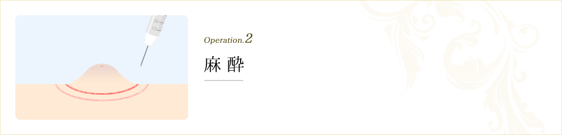 operation.2 麻酔