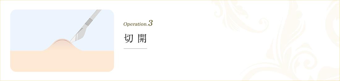 operation.3 切開