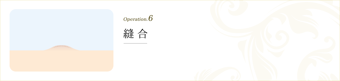 operation.6 縫合